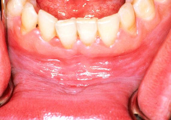 ami szájüregi rák a paraziták testének tisztítása és helyreállítása
