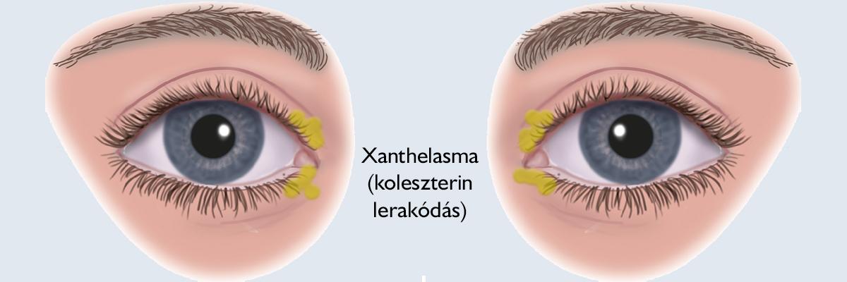 papillomus szemek vélemények távolítsa el az amygdala papillómáját