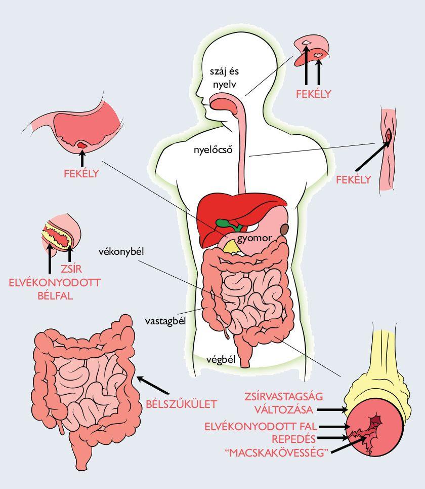 puhatestű-parazita az emberi test kezelésében)