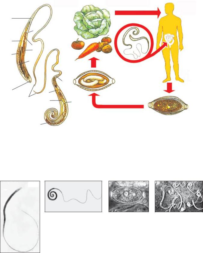 parazitológia trichocephalosis)