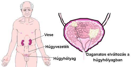 Urológiai rákos megbetegedések - Urológiai Központ