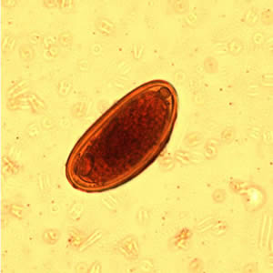 Enterobiosis életciklus,