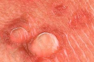 genitális hpv diagnózis