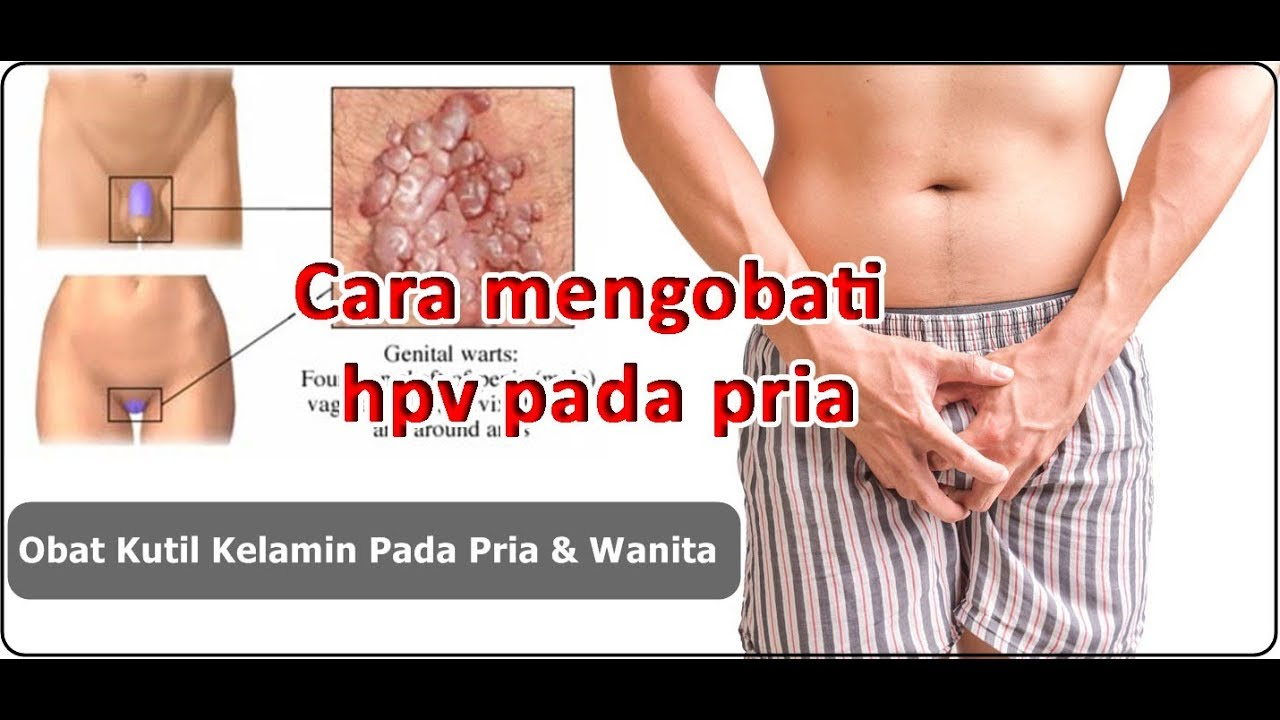 penyakit hpv pada wanita)