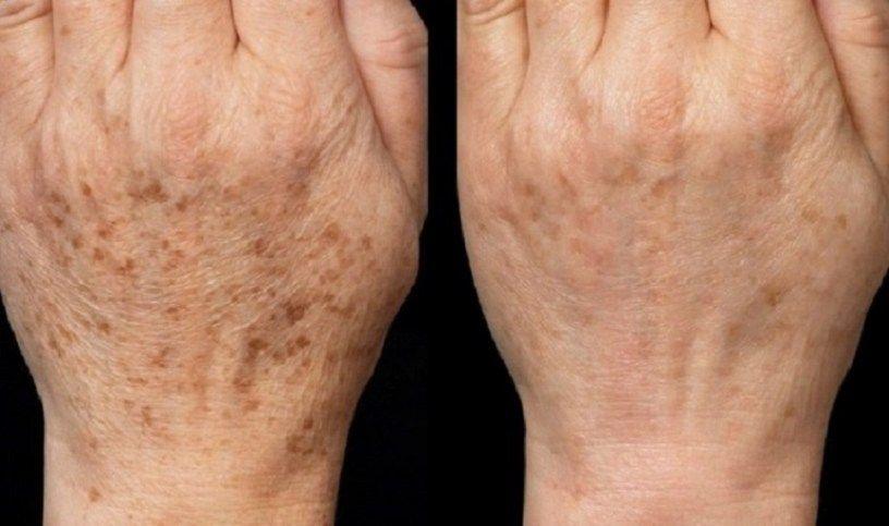 Bőrméregtelenítés 3 egyszerű lépésben - Szépség és divat | Femina