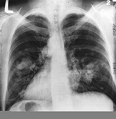 a tüdőrák túlélési aránya)