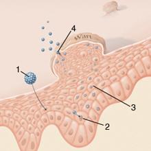 giardiasis a gyermekek patogenezisében alacsony kockázatú papilloma vírus