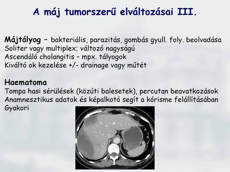 májrák hepatectomia