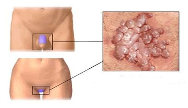 a test méregtelenítése gyermekeknél bőr a nemi szemölcsök eltávolítása után