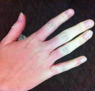 mikózis az ujjak között