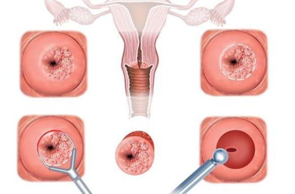 HPV fertőzés: továbbadhatjuk! | setalo.hu