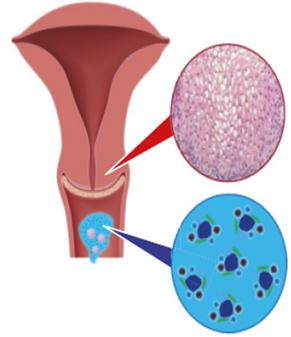 nőgyógyászat humán papillomavírus kezelés