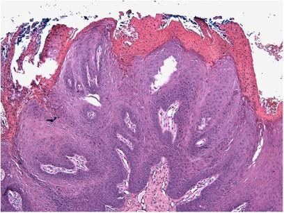 intraductalis papilloma epithelialis hyperplasiaval)