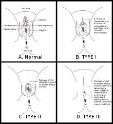 a genitális szemölcsök rádiófrekvenciás koagulációja)
