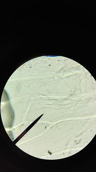 parazita betegségek parazita jegyek