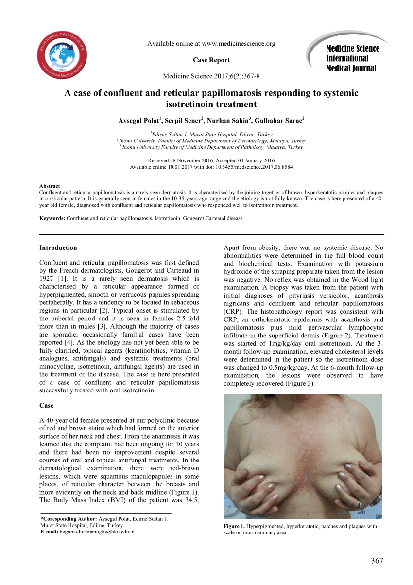 a papillomatosis összefolyik és a reticularis terápia