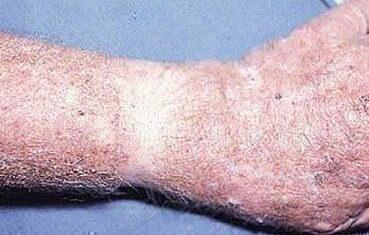 pikkelyes bőrrák hpv vírus nu
