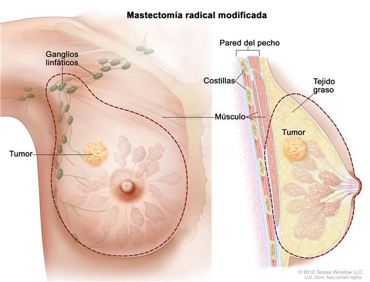 HPV-szűrés és tipizálás - setalo.hu