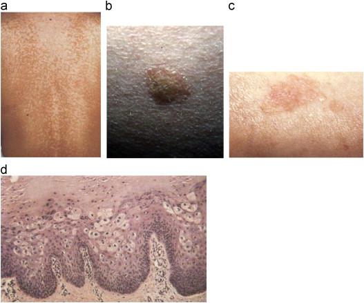 condyloma acuminata és hpv emberi papillomavírus elleni vakcinára vonatkozó óvintézkedések