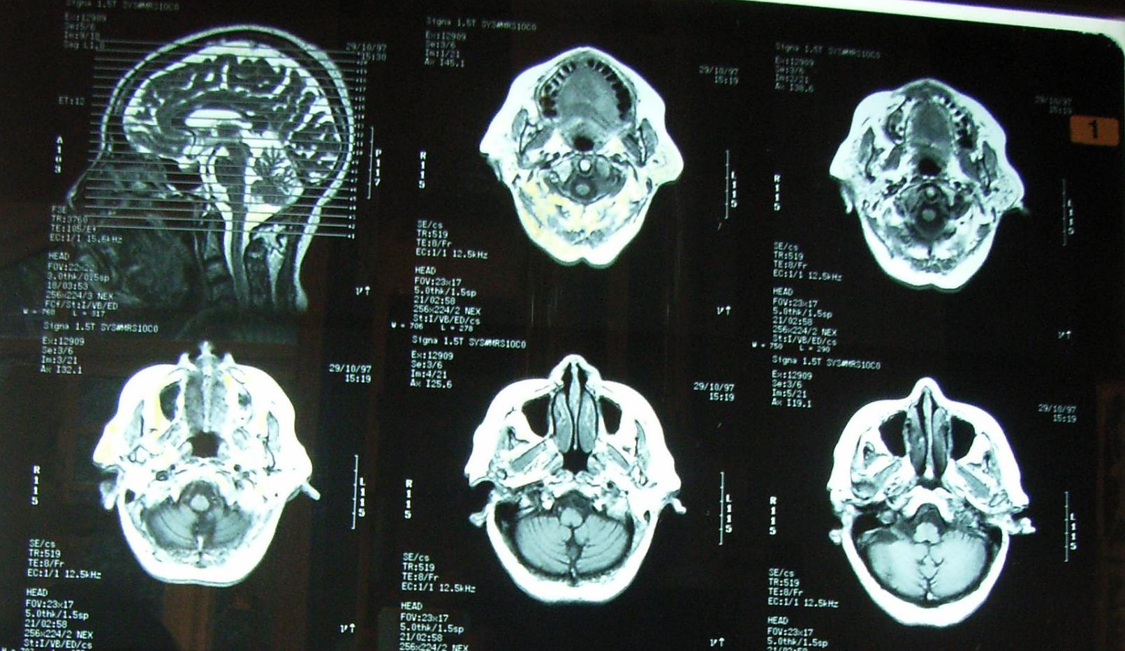 petefészekrák röntgenen)