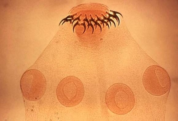 pinworms kezelés nitazoxanid