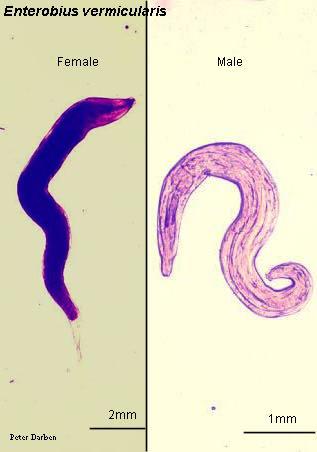 oxyuris vermicularis menyebabkan penyakit)