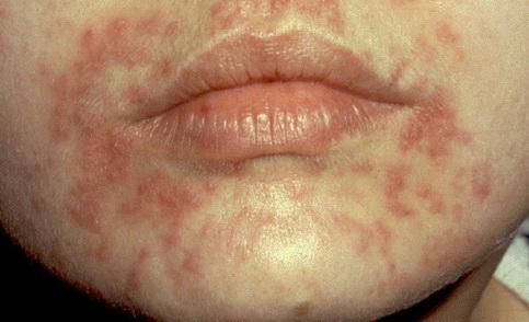megrepedt bőr papillómák szerek a giardiasis kezelésére