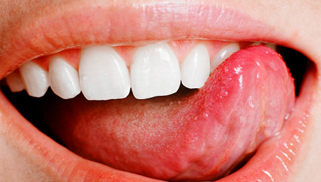 A szájüregi daganatról