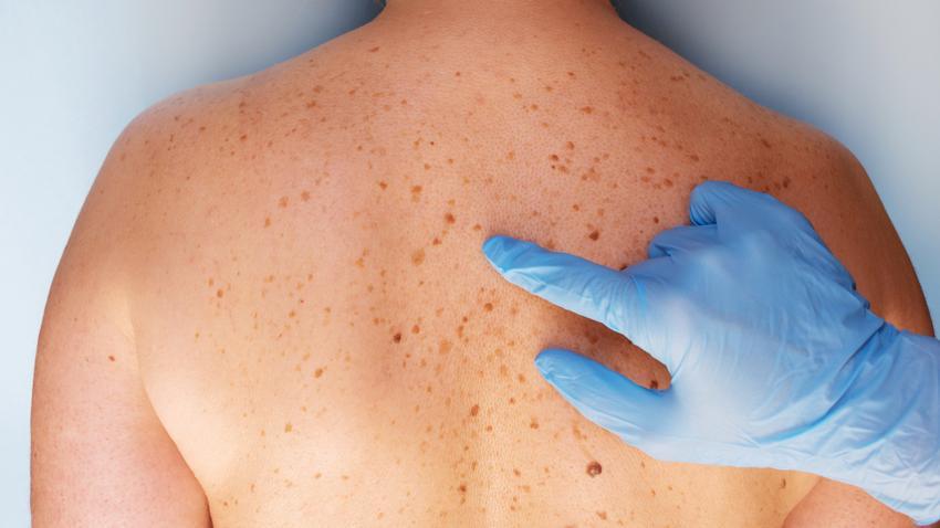 Bőrrák: jóindulatú bőrdaganatok