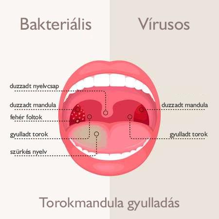 garat váladék baktériumok