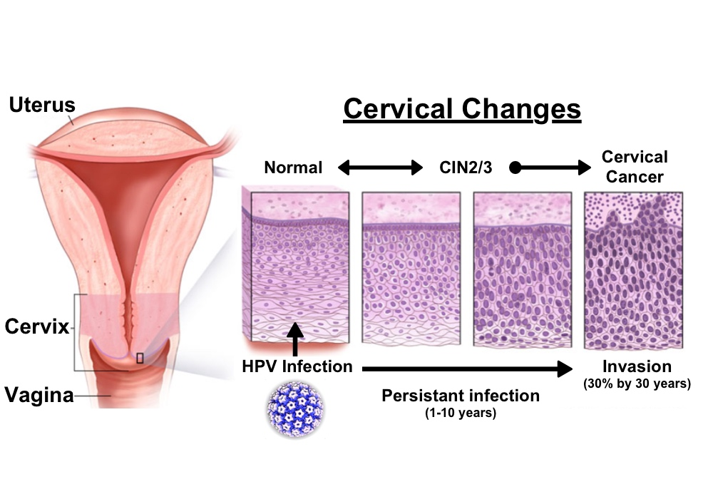 A humán papillómavírus és a rák - Mutáció.hu