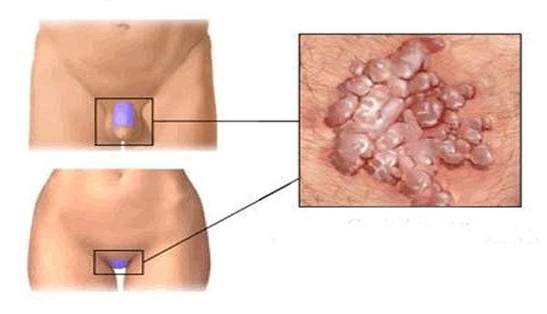 Condyloma-égetés