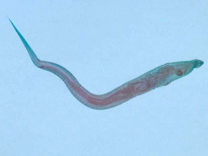 cn enterobiosis