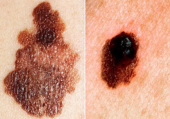 ahol bőrrák fordul elő