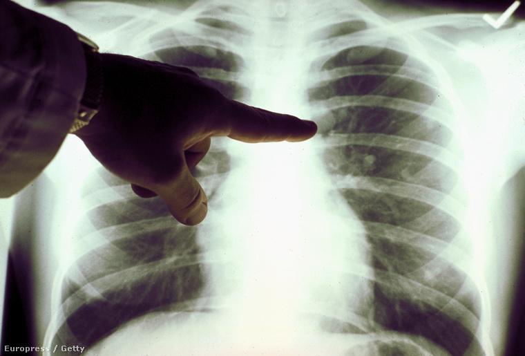 műtött tüdőrák féregellenes 3 évig