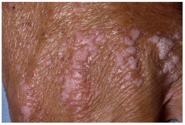 mycoplasma condyloma in)