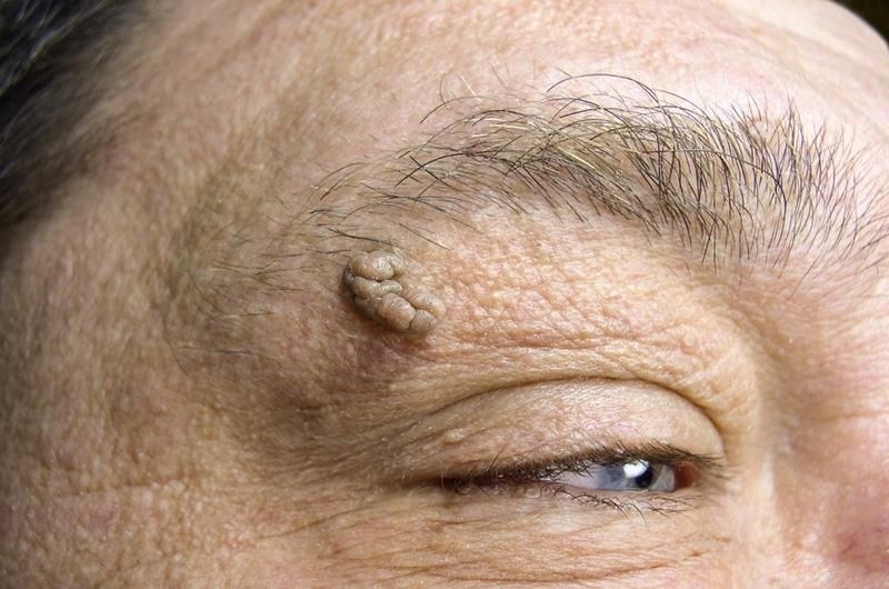 A hüvelyi szemölcs okai és kezelése moxibustion szemölcsök vélemények