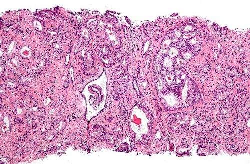 papilloma vírus nyelvdaganat