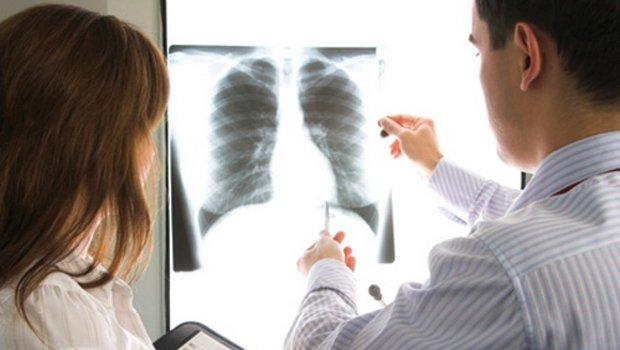 hpv pozitív tüdőrák