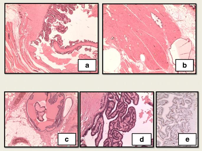 a condyloma különböző papillómája a férgek legjobb megelőző kezelése