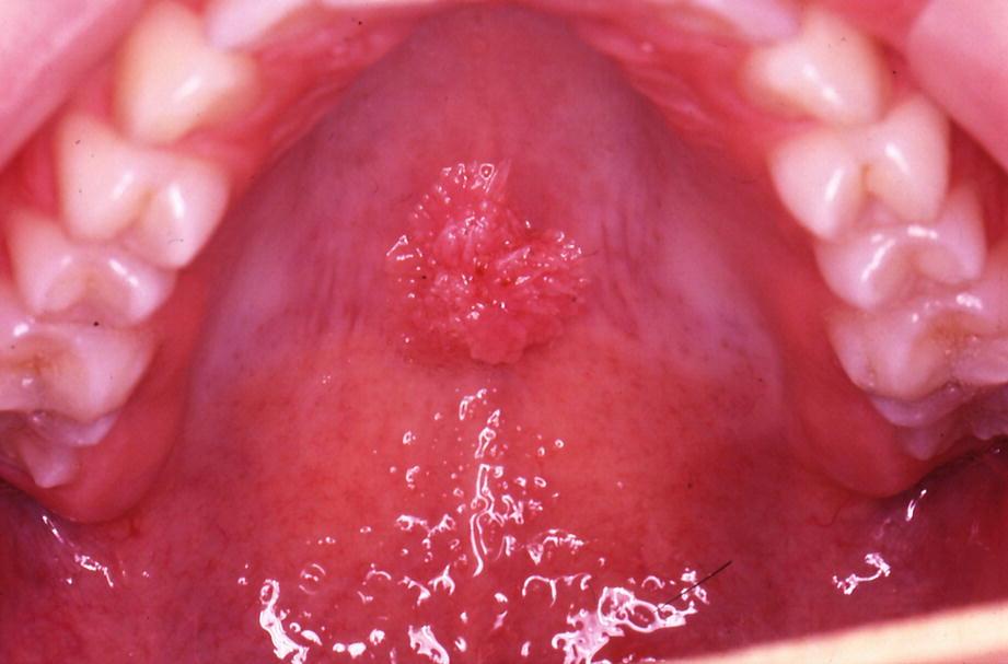 Bakteriális vaginózis - Dr. Zatik János Debrecen