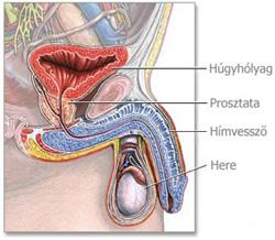 A krónikus prosztatagyulladás tünetei és kezelése