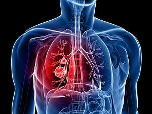 agresszív rák a tüdőben