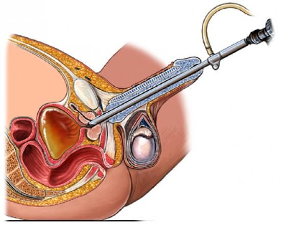 prosztatarák műtét