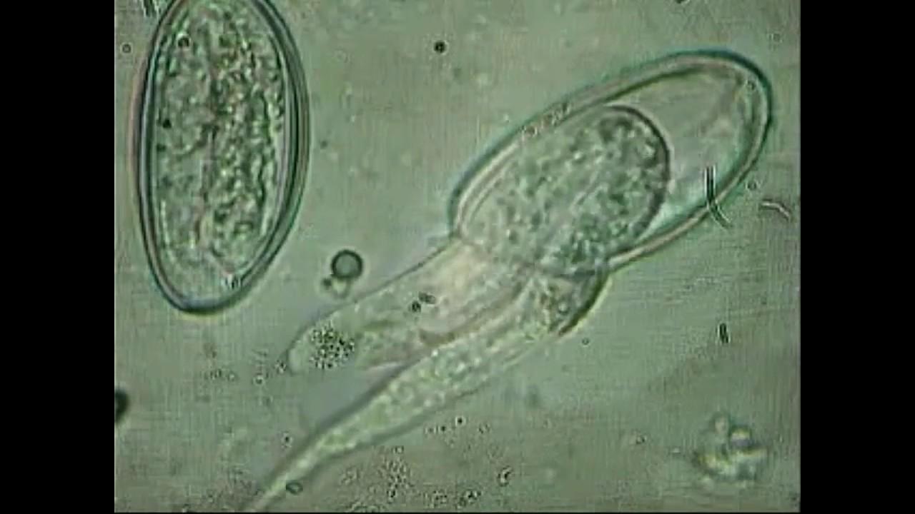 Hpv virus gyogyitasa ferfiaknal - Helminths adalah - Hpv virus fertozes tunetei