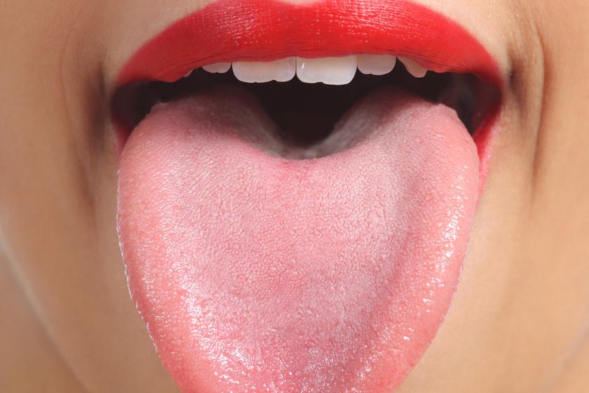 szemölcsök a nyelv alatt, miközben mutat