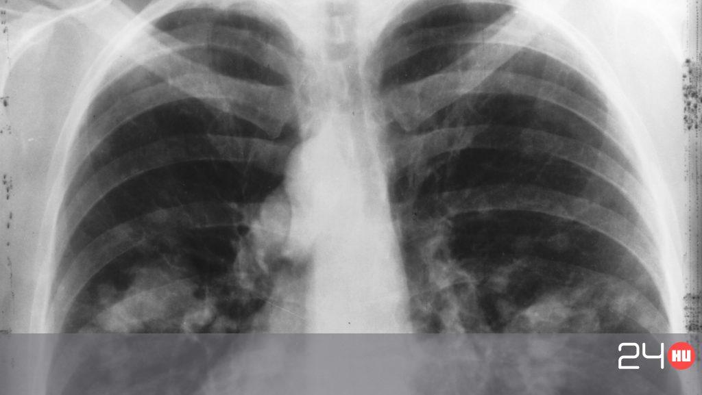 A három leggyorsabb daganat
