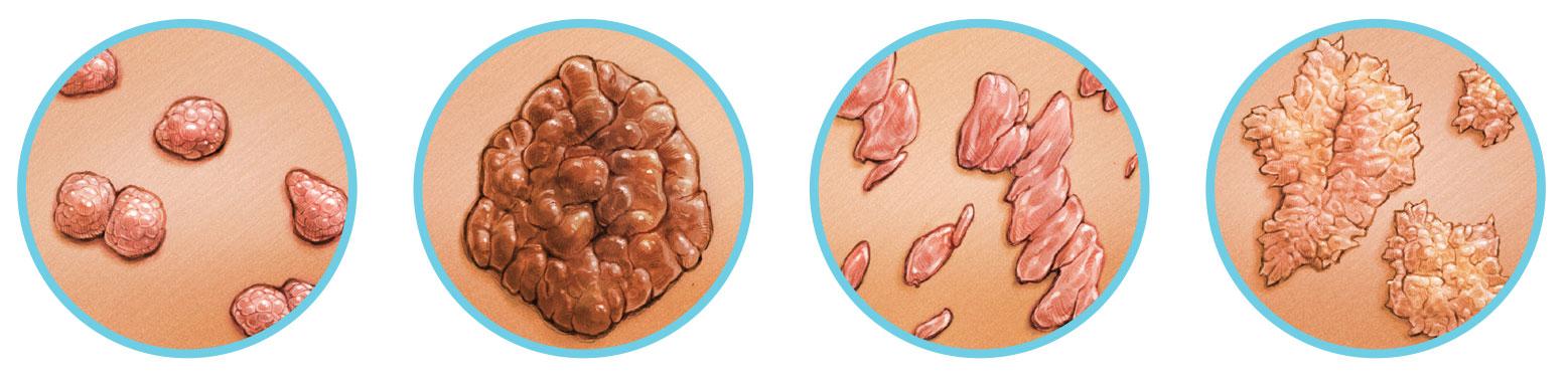 zygomycete gombák condyloma tumor