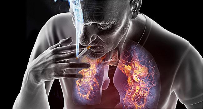 Tüdőrák | Rákgyógyítás
