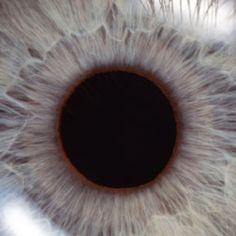 szem triocephalus)